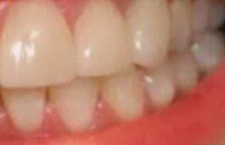 Зубы до отбеливания