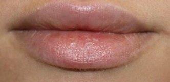 Увеличитель губ Fullips после