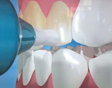 Набор для отбеливания зубов