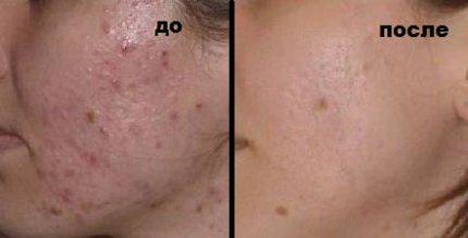 Уход за проблемной кожей лица у мужчин