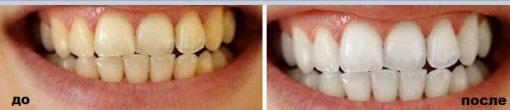 Отбеливающие полоски Crest3D White до и после