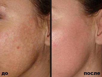 Крем отбеливающий Сияние кожи до и после