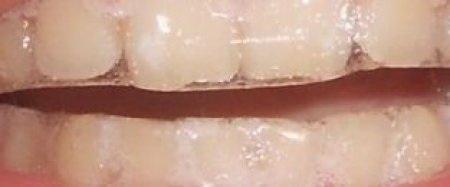 Отбеливающие полоски на зубах