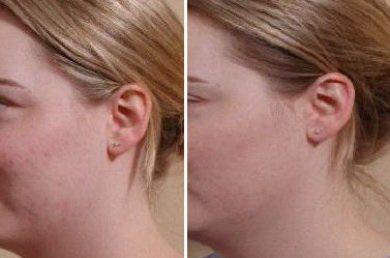 derma cote до и после