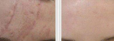 derma cote от рубцов до и после