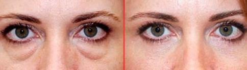 Neolid комплекс от мешков под глазами до и после