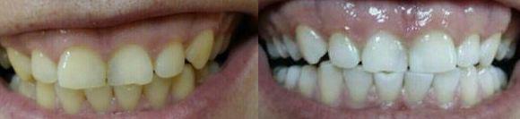 White Lotus зубная паста до и после