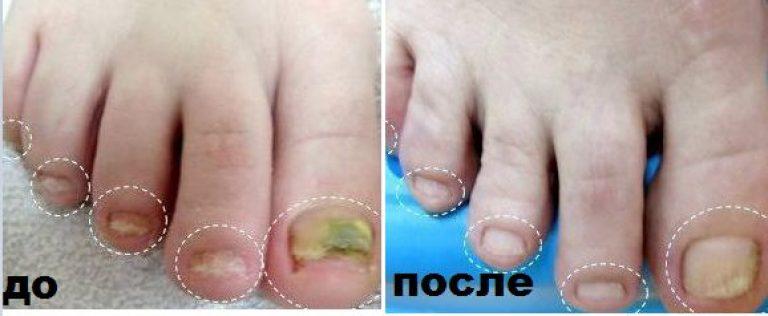 Лечение грибка ногтей перекисью и уксусом