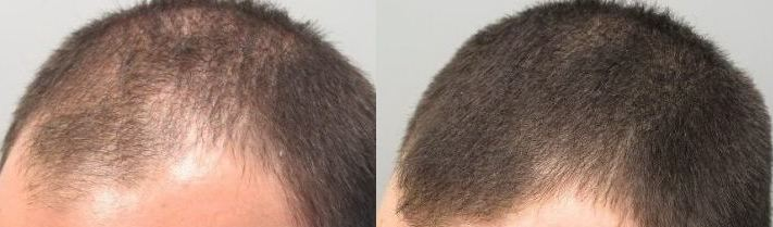 Minoxidil препарат для роста волос