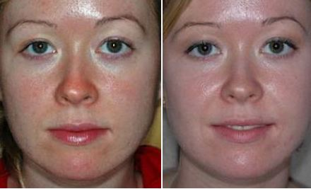 Botox Active Expert для лица отзывы
