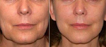 Botox Active Expert до и после