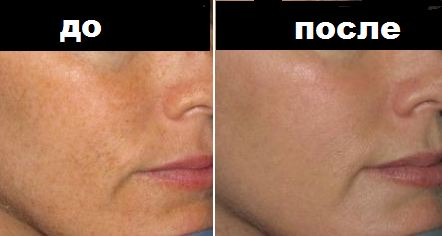 Milk skin до и после